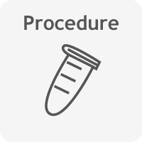 B cell ELISPOT procedure